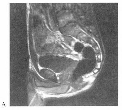 17A Image IRM en coupe sagittale du pelvis chez l homme. 17B chez la femme.  17C D Dissection de la pompe éjaculatoire du périnée masculin avec muscles  ... b37c3b612ae